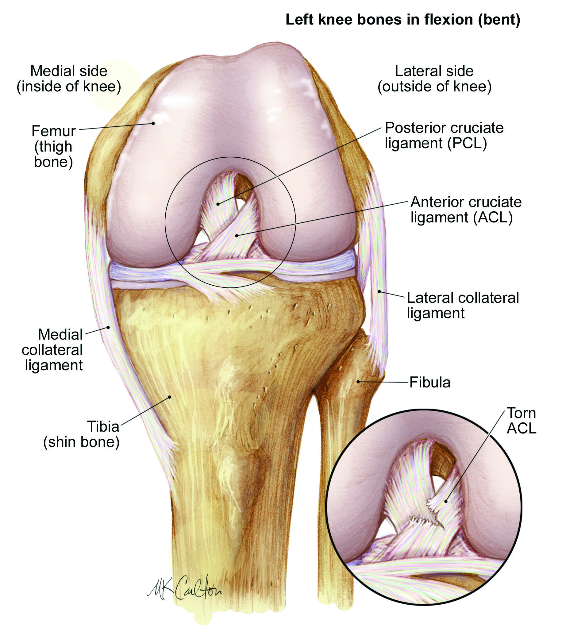 ACL Injuries Rehab Physiotherapy Singapore