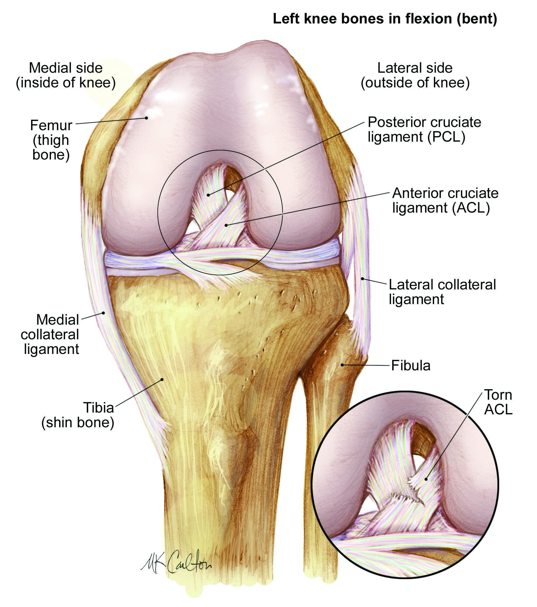 Anterior Cruciate Ligament